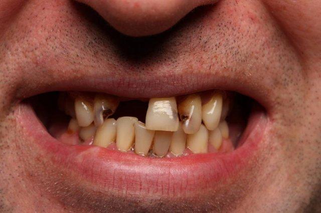 Czasami kolor zębów jest ich najmniejszą wadą...