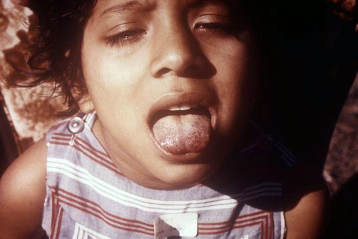 Dziewczynka ze szkorbutowym językiem.