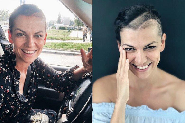 Po poważnej operacji, którą Alżbeta Lenska przeszła w maju, aktorka powoli dochodzi do siebie. Po drodze przewartościowała parę spraw.