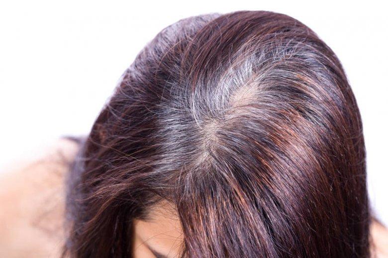Nie zawsze siwizna oznacza podeszły wiek. U niektórych osób srebrne włosy pojawiają się jeszcze przed 30-stką