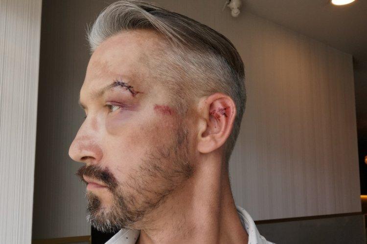 Hubert Centkowski został pobity przez mężczyznę, przed którym bronił jego żonę.