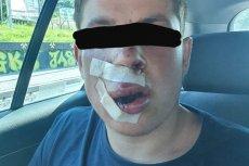 Student z Ukrainy został ciężko pobity gdy wyjawił , skąd przyjechał. Jest nagroda za wskazanie sprawców.