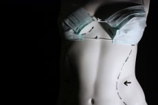 Implanty PIP może nosić od 350 do 500 tys. kobiet