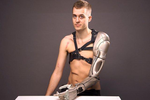 Renomowany producent gier komputerowych z Japonii obdarował poszkodowanego Brytyjczyka nowoczesną protezą wywołującą skojarzenia ze znanymi utworami science fiction