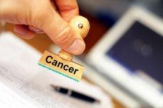 Dlaczego coraz więcej młodych choruje i umiera na raka?