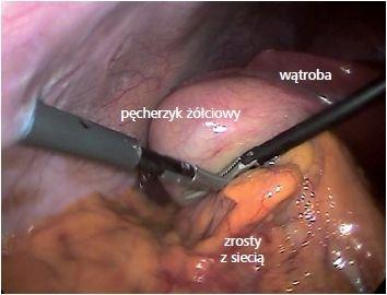 Na zdjęciu widoczne pęcherzyk żółciowy oraz narzędzia chirurgiczne, wprowadzone przez mikroporty do jamy brzusznej.