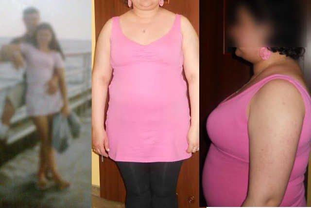 Zdjęcie Eweliny przed (z lewej) i po chorobie.