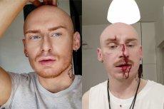 Znany stylista został pobity na ulicy