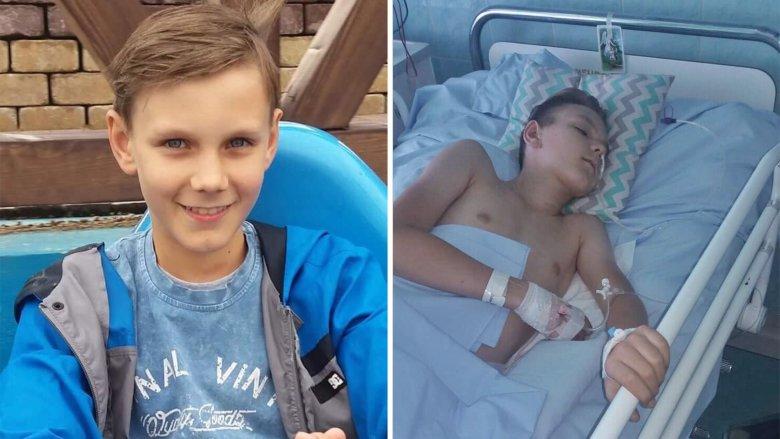 Paweł Rek. Po lewej dziecko zdrowe, po prawej w ciężkim stanie