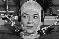 Pierwsza transplantacja głowy raczej nie za dwa lata...