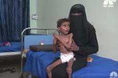 Miliony ludzi w Jemenie może umrzeć z głodu – organizacje międzynarodowe biją na alarm. Tu: screen z NBC News.