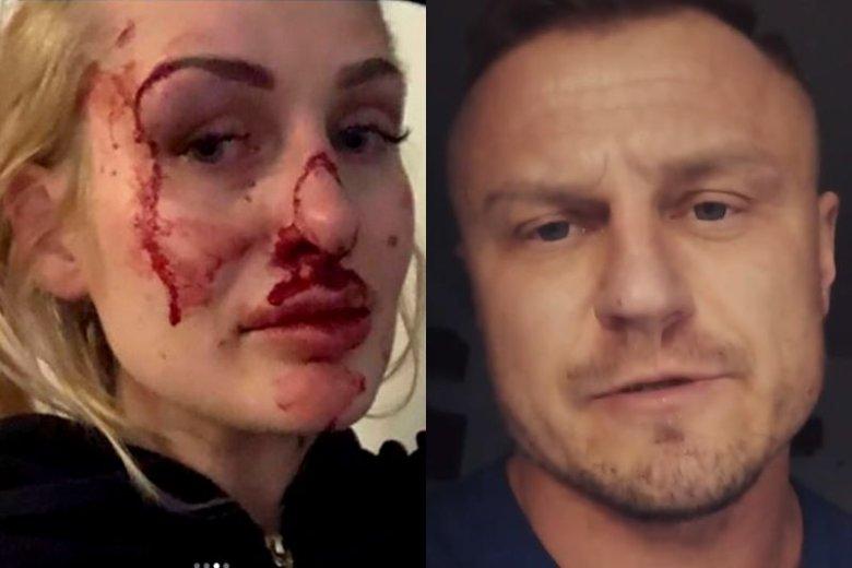 Sprawa pobicia 26-letniej kobiety zbulwersowała internautów w całej Polsce. Jej partner i trener został zatrzymany przez policję, ale już wyszedł z aresztu
