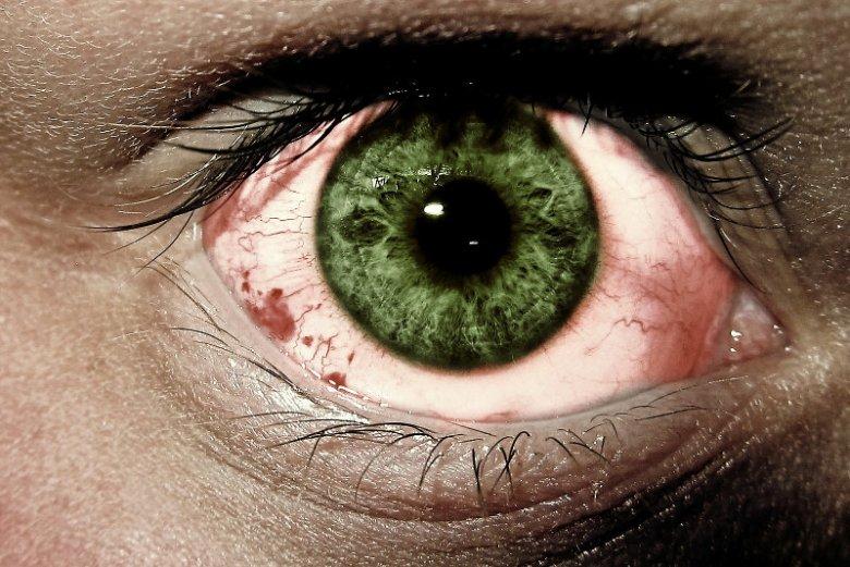 Jednym z objawów tej choroby może być przekrwienie oczu.